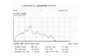 Padmini Urology Clinic - Laparoscopy, Dialysis Center – Kidney ...